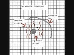 Eye Test Chart Grid Amsler Grids
