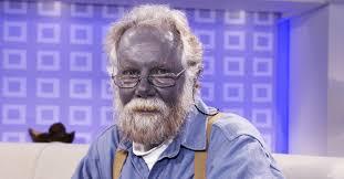 Redhead man turned blue colloidal silver