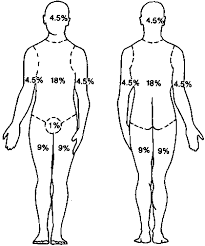 Rule Of 9 S Burn Chart Child Faithful Rule Of Nines Diagram Rule Of 9s Burn Chart Child