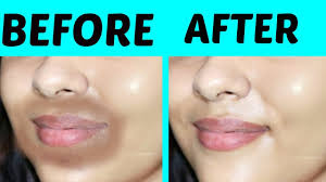 remove dark patches around mouth area 100 effective tanutalks