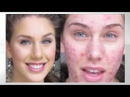 beyoutiful acne foundation