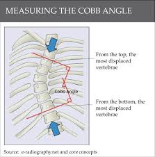 Scoliosis Degrees Of Curvature Chart Understanding Cobb Angles And What It Means For Scoliosis