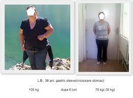 Cat Costa Inelul Gastric - gastric-bandtratament Obezitate