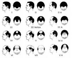 Male Pattern Hair Loss