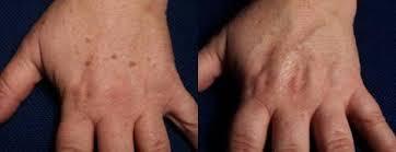 Laserové Odstranění Tetování A Pigmentací Nezvěstice Na Estheticoncz