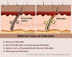 what are the diffe types of folliculitis