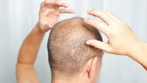 Do you have folliculitis hair loss? - Modena Hair Institute