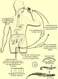 Острицы и аскариды разница аскариды и острицы реферат Лечение аскарид и остриц