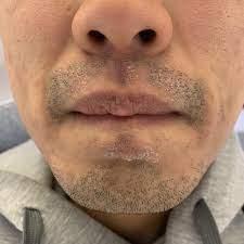髭 剃り 肌荒れ