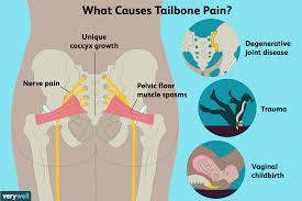 Tailbone Pain Causes Treatment And When To See A Doctor