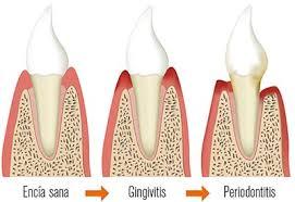 Resultado de imagen de gingivitis