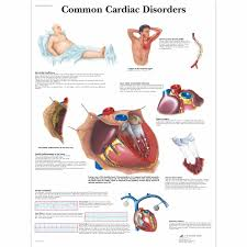Anatomy Of The Heart Chart Common Cardiac Disorders Chart