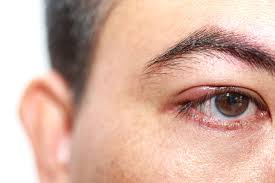 man with a stye in burlingame