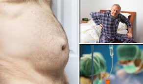 Do YOU know the symptoms of a hernia? Condition can obstruct organs ...