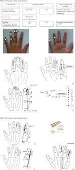 Korean Acupressure Chart Effects Of Korean Hand Acupressure On Opioid Related Nausea
