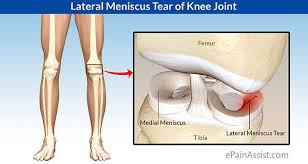 Meniscus ligament tear