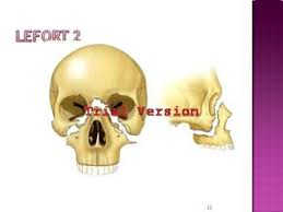 Le Fort Fracture Lefort Fracture Powerpoint Youtube