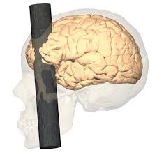phineas gage before the accident. learning about brain science from phineas gage before the accident