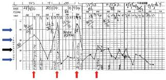 Patients Temperature Chart Showing Fever Spikes 24 H Apart