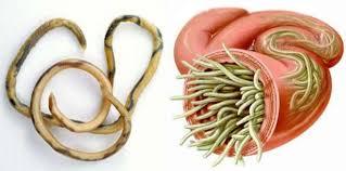 Ascariasis Roundworms Roundworms Ascariasis Nurseslabs