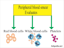 Red Blood Cell Rbc Part 1 Morphology Peripheral Blood