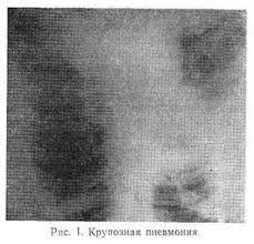 Реферат Пневмония диагностика и лечение ru Течение крупозной пневмонии носит циклический характер Однако в последние годы в связи с применением современных методов лечения классическое течение ее
