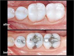 dental onlay dental onlays mississauga dentist dentistry by dr