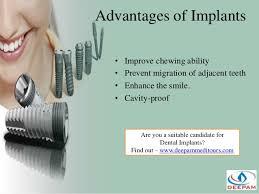 Dental Implant Quotes