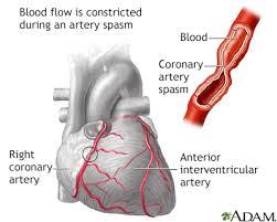 coronary artery spasm symptoms and causes