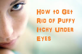 how to get rid of puffy itchy under