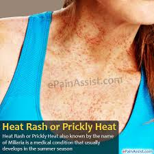 heat rash or ly heat causes who is at risk symptoms diagnosis treatment home remes prevention