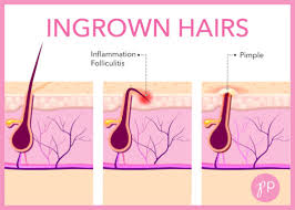 how to treat prevent ingrown hairs