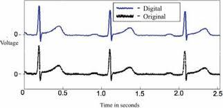Plot Showing Paper Ecg Signal Black And Digitized Ecg
