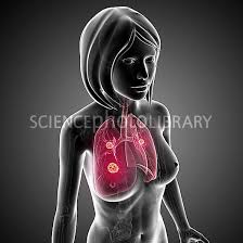 smoking and lung cancer essay topics at least 75 are known to cause cancer in people or animals in the united states cigarette smoking is linked to about 85% to 95% of lung cancers