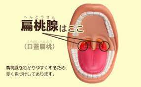 扁桃 腺 切除 デメリット