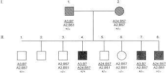 Pedigree Of The Family With Hs And Hemochromatosis Healthy