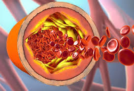 Cholesterol Level Charts Healthy Cholesterol Ranges Ideal