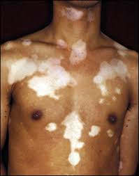 Image result for generalised vitiligo