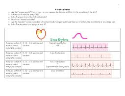 Ekg P Wave Chart Student Nurse Laura