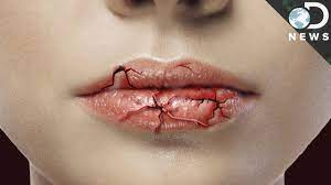 why do your lips get chapped