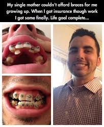 BRACES SMILE QUOTES Google Search Orthodontic Health Gorgeous Braces Quotes