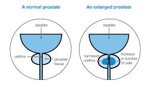 Enlarged Prostate Prostate Cancer Uk