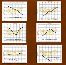 Hearing Banana Chart How To Understand Hearing Loss Audiograms The Baha Blog