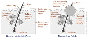 Pimples On Body Chart Acne Young Mens Health