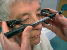 Hertel Exophthalmometer In Use Reproduced With The
