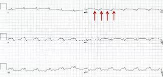 Trick Of The Trade Speed Up Ecg Paper Rate To Differentiate