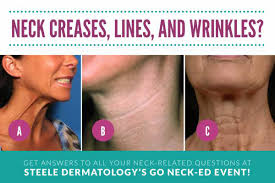 Best neck treatment for aging neck