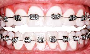Image result for teeth