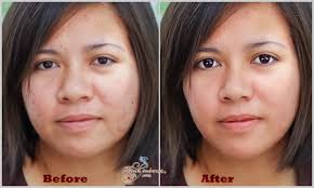 face slimming face weight lose
