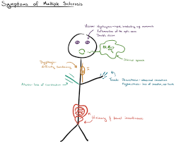 Multiple Sclerosis Chart What Is Multiple Sclerosis Article Khan Academy